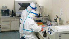 Lào Cai: Sẽ mua thêm 2 máy xét nghiệm SARS-CoV-2
